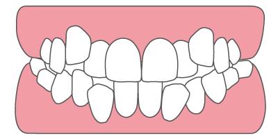 歯列のデコボコ